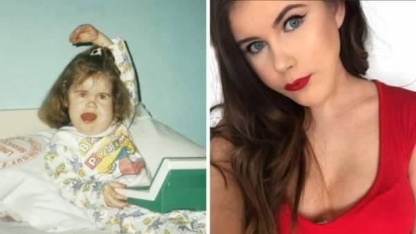 Она родилась с большими кистами во рту и врачи сказали, что она никогда не сможет говорить