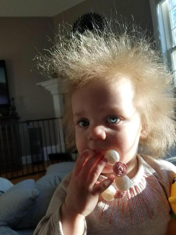 Редкий случай: девочка с волосами, которые невозможно причесать